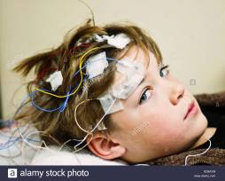 boy-getting-an-eeg-KD8AYM
